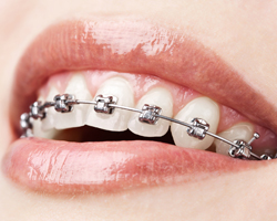 stainless-steel-braces